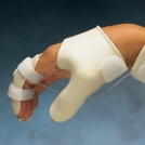 Tenodesis Thermoplastic Splint Kit