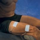 UltraStim® WIRE Electrodes